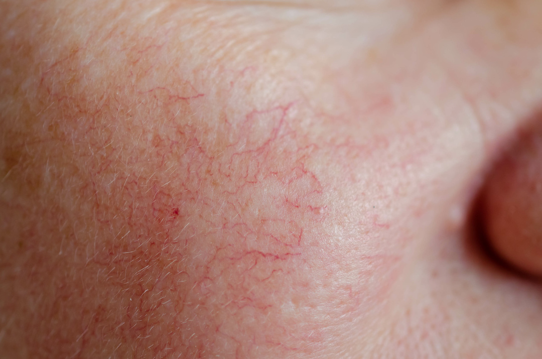 Close up of human face skin with vascular problems
