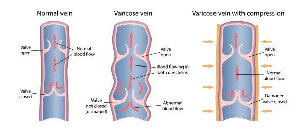 Diagram of varicose vein