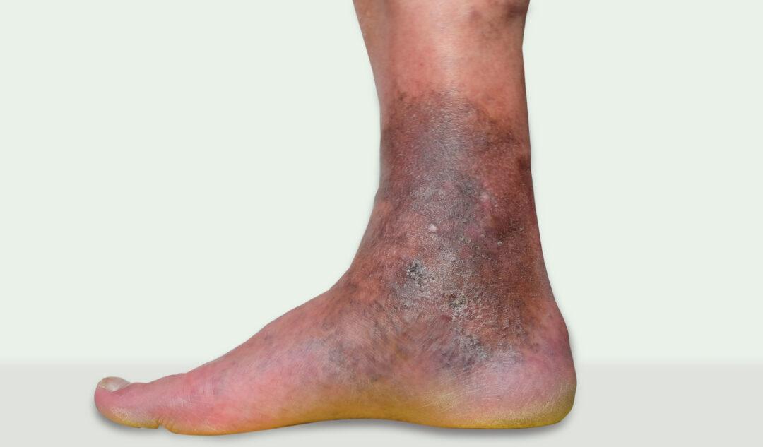 varicose eczema on ankles